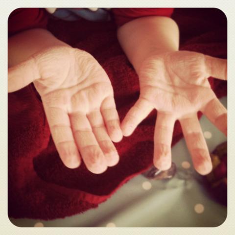 schrumpelhände